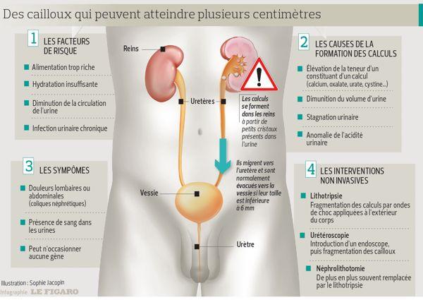 Dossier des calculs urinaires: douloureux mais sans