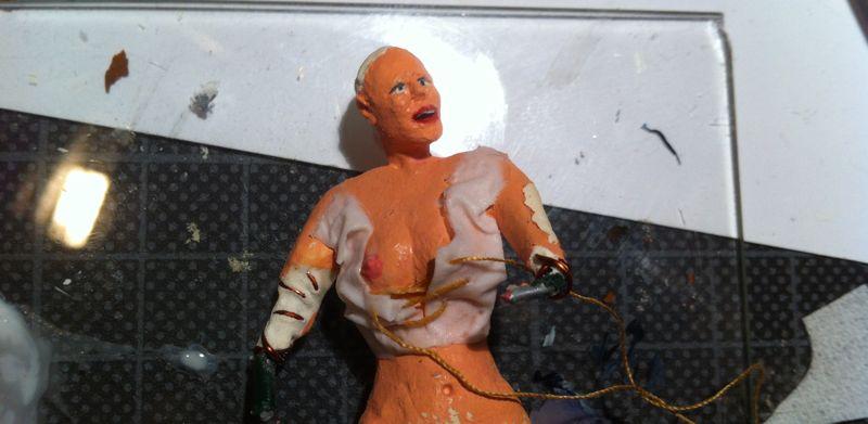 Die Operation nach uweletscheniju die Brüste